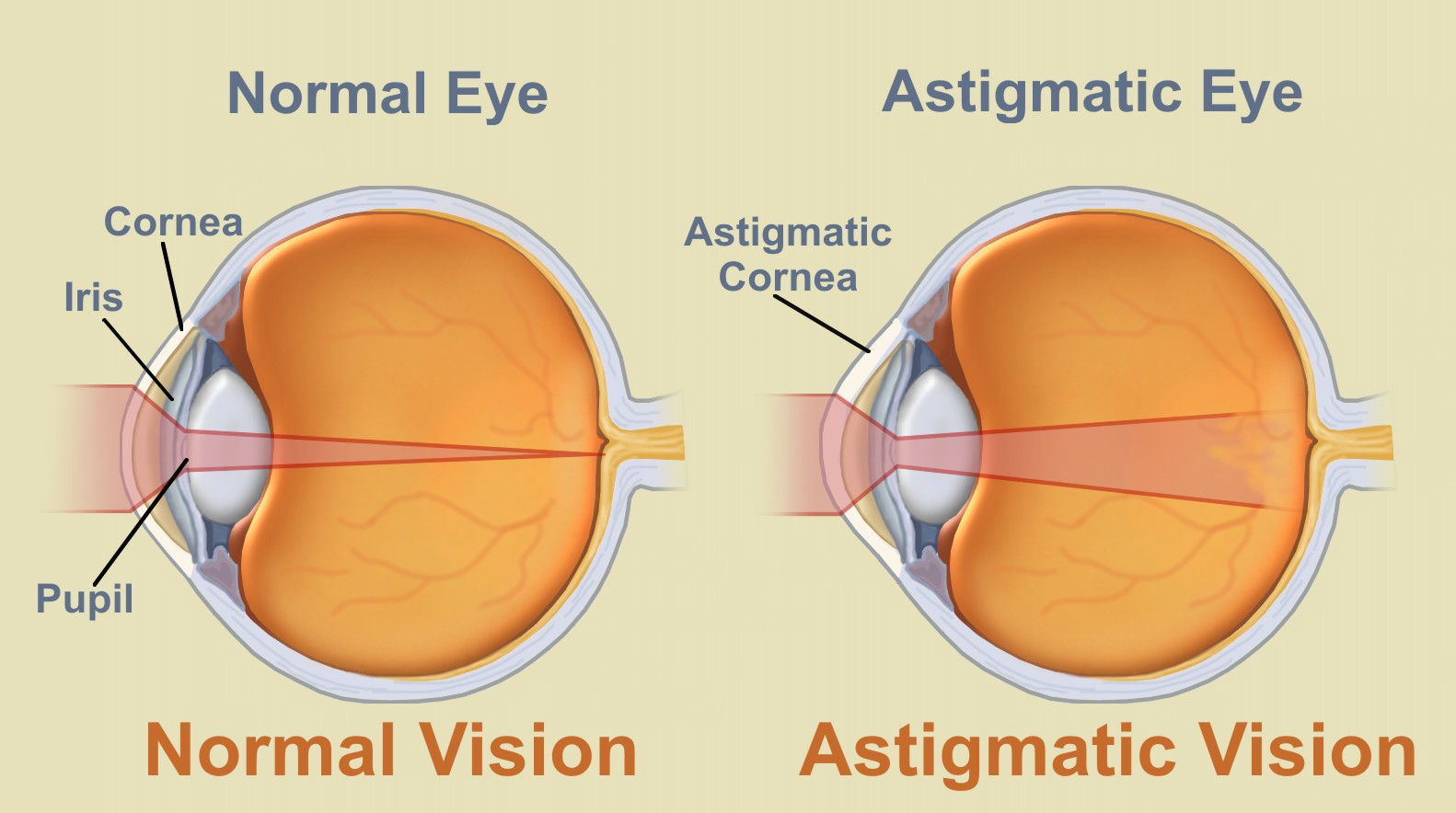 Как избавиться от астигматизма